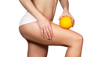CELLULITE IS NOT A WEIGHT PROBLEM